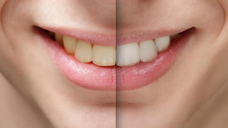Diş beyazlatma sonrası bakım nasıl yapılmalı, nelere dikkat edilmeli?