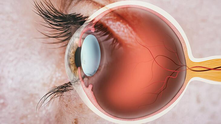 Diyabete bağlı olarak gelişebilen 3 göz hastalığı ve tedavi yöntemleri
