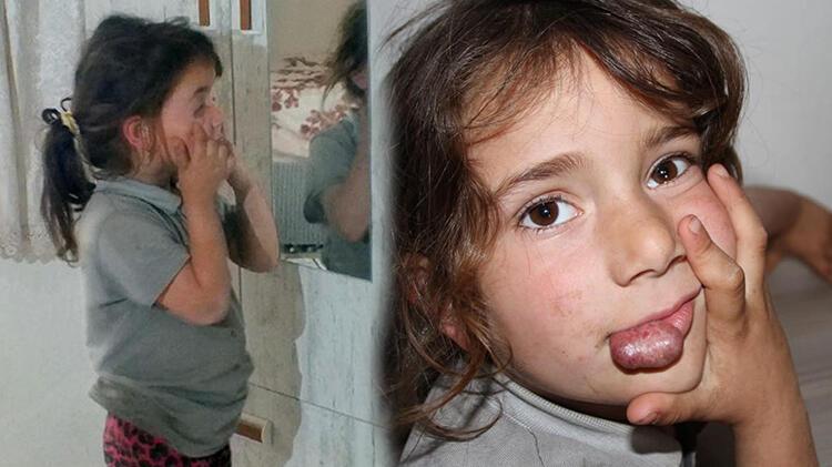 Dudağındaki kitle her geçen gün büyüyor! Rabia yardım bekliyor