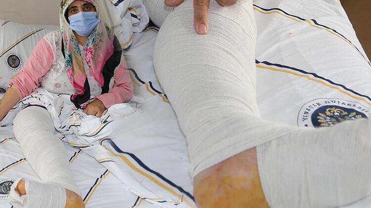 Varis şişi sanıp önemsemediği bacağından 10 kilo tümör çıktı!