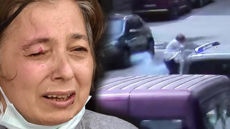 Yoldaki kadının gözüne maytap isabet etti!