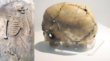 İlk ameliyatlı kafatası 'canlandırılacak'